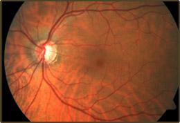 glaucoma_img