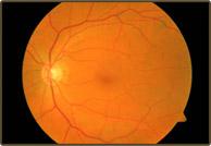 normal_retina